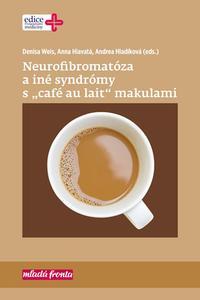 """Neurofibromatóza a iné syndromy s """"café au lait"""" makulami"""
