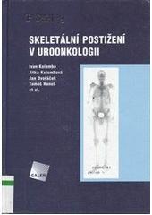 Skeletální postižení v uroonkologii