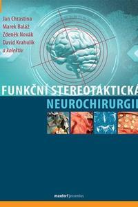 Funkční stereotaktická neurochirurgie