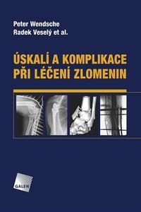 Úskalí a komplikace při léčení zlomenin